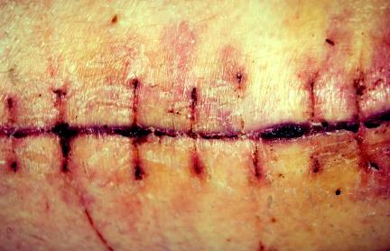 צלקת חמורה עקב התרשלות של רופא